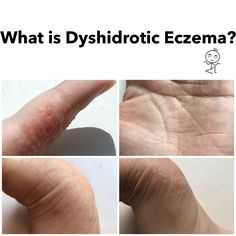 What is Dyshidrotic Eczema? Blisters on fingers, hands, and feet.