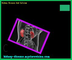 Kidney Disease And Calcium 101305 - Start Healing Your Kidneys Today!