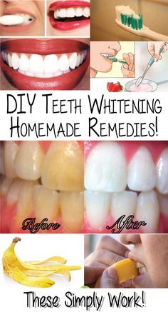 There are a several ways to whiten teeth, some economical, others positively expensive. You have a choice to decide how to enhance your smile,