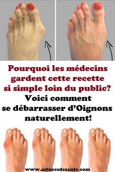 Here's how to get rid of bunions completely natural! - Page 5 of 5 - Viral Health Bunion Remedies, Gout Remedies, Health Remedies, Natural Remedies, Herbal Remedies, Vicks Vaporub, Bunion Relief, Pain Relief, Stay Fit