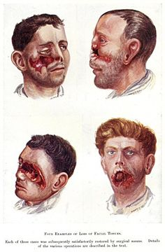 watercolor portraits of injured soldiers of WW1, done in Queen's Hospital