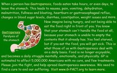 What is Gastroparesis? I want a shirt with this on it so I don't ever have to explain it again!
