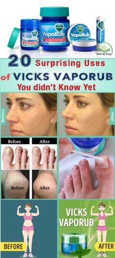 20 Surprising Uses of Vicks VapoRub You didn't Know Yet #vicks #vicksvaporub #know #skincare #beauty #uses