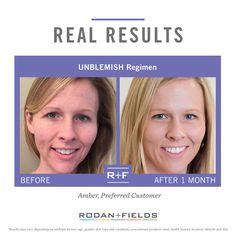 Rodan + Fields https://nancylsmith.myrandf.com