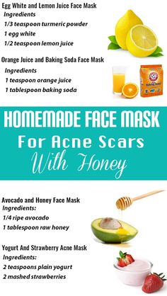 Homemade Face Masks For Acne Coconut Oil – Raise your hand when you've ever sensed personally victimized through breakouts. If you did not raise your hand, luck Homemade Face Masks, Diy Face Mask, Lemon Juice Face, Face Mask Ingredients, Face Mask For Blackheads, Pimples, Baking Soda Face, Homemade Acne Treatment, Blemish Remover
