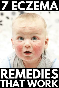 From environmental factors to diet and cream recommendations, these eczema remedies will help keep your eczema under control and prevent future flare ups. Ginger Benefits, Health Benefits, Eczema Relief, Itch Relief, Eczema Remedies, Sleep Remedies, Health Remedies, Beauty