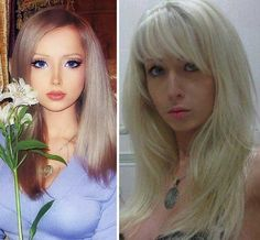 Photos of Valeria Lukyanova before and after Barbie Doll plastic surgery