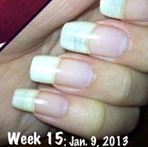 Nail Oil - Pure Nail Oil and Cuticle Oil Challenger Olga's Results Nail Growth Simple Nail Art Designs, Easy Nail Art, Nail Designs, How To Do Nails, Fun Nails, Nice Nails, Nails News, Nail Oil, Manicure Tips