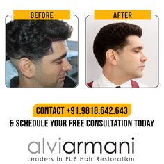 With outstanding results, Alvi Armani - India has also been delivering satisfaction and confidence to thousands of our happy clients. Call us at to schedule a free consultation today! Hair Transplant In India, Indore, Hair Restoration, Hair Loss, Schedule, Confidence, Happy, Free, Timeline