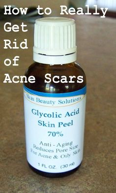1 oz / 30 ml) GLYCOLIC Acid 70% Skin Chemical Peel - Unbuffered - Alpha Hydroxy (AHA) For Acne, Oily Skin, Wrinkles, Blackheads, Large Pore...