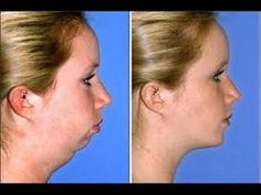Facial Exercises To Tighten Chubby Cheeks, Lose Face Fat, Reduce Double Chin, And Tone Skin