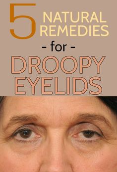 5 Natural Remedies For Droopy Eyelids - All Beauty Tips for women