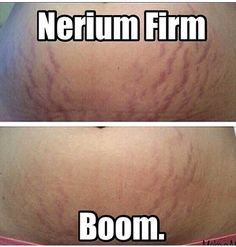 Get rid of stretch marks, cellulite, and firm your loose it aging skin with NERIUM FIRM! 30 day money back guarantee! www.maryellier.nerium.com