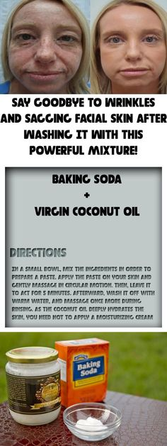 After washing your face with this remedy, you will have no acne, reduced wrinkles, and no more sagging skin! Baking soda and coconut oil both have tons of benefits, but they can transform your skin… * More info: | http://qoo.by/2mtE