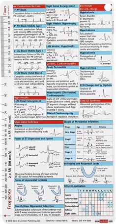 ECG Pocketcard: Bbp: 9781591034896: Amazon.com: Books