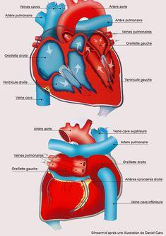 L'infarctus du myocarde : des premiers signes au traitement - Sciencesetavenir.fr