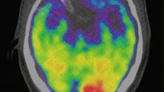 Wer ständig auf Hochtouren lebt, hat ein ähnliches Risiko für Schlaganfall und Herzinfarkt wie Raucher. Eine aktuelle Studie zeigt: Auslöser ist ein kleiner Kern im Gehirn.