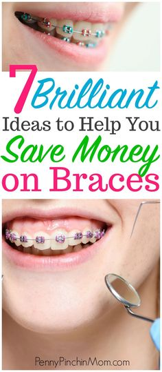 Smart ways to save money on braces for your children. There is even a way that you may qualify to get them at no cost. Kids Braces, Braces Smile, Best Money Saving Tips, Ways To Save Money, Saving Money, Spacers For Braces, Getting Braces, Kids Dentist
