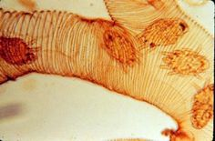 honey bee trachea infested by Tracheal mite
