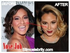 Adrienne Bailon Plastic Surgery Before and After Nose Job, Face lift and Boob Job 1