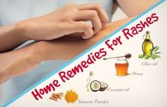 Natural Rash and Skin Irritations healing