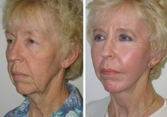 Learn To Minimize Saggy Face: How Facial Aerobics Can Reconstruct Your Skin Towards A Magnificent Look