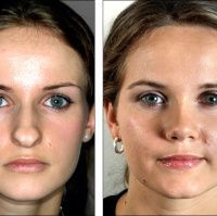 """Nose Reshaping (Rhinoplasty) or a """"Nose Job"""" is concerned with the external Die Nasenkorrektur (Nasenkorrektur) oder ein """"Nasenjob"""" befasst . Rhinoplasty Before And After, Bulbous Nose, Nose Reshaping, Nose Shapes, Nose Contouring, Nose Surgery, Rhinoplasty Surgery, Celebrity Plastic Surgery, 10 Years"""