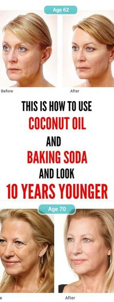 This Is How To Use Coconut Oil And Baking Soda To Look 10 Years YoungerIf you have issues with wrinkles and sagging facial skin, do now not worry. Beauty Secrets, Beauty Hacks, Beauty Tips, Diy Beauty, Beauty Makeup, Beauty Skin, Health And Beauty, Natural Face Cleanser, Natural Skin