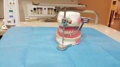 ¿Son peligrosas las amalgamas en nuestros dientes?.#Salud