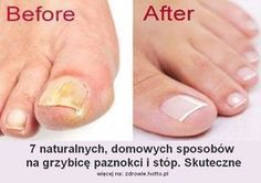 REMEDIES FOR TOENAIL FUNGUS Toenail fungus is a common fungal infection that grows in moist, warm and dark environments that affects mostly on toenails and fingernails. It appears as yellow or white spots on one or more nails that Toenail Fungus Remedies, Toenail Fungus Treatment, Nail Treatment, Home Remedies, Natural Remedies, Fungi, Natural Treatments, Nailed It, Health Tips
