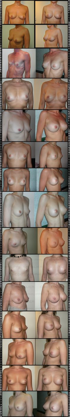 Before and After Breast Augmentation (Breast Enlargement) This insufficient breast volume is often a source of physical and psychological distress for the patient who feels she lacks femininity, with also a lack of self confidence and poor self-image which can lead to an inferiority complex. Breast augmentation with implants is the solution to these problems.