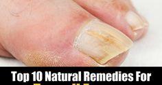 Top 10 Natural Remedies For Toenail Fungus   Green Yatra Blog