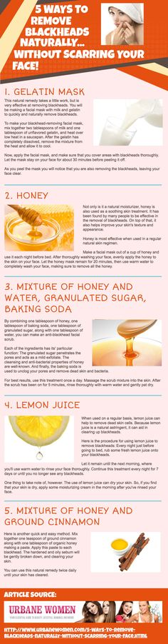 5 Ways To Remove Blackheads Naturally... Without Scarring Your Face! [Infographic]