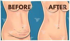 """Cette recette, en plus d'être délicieuse, est digestive et accélère le métabolisme, étant idéale pour brûler les graisses. Il est donc tout à fait approprié pour ceux qui veulent perdre du poids et """"accorder"""" le ventre. Il aide également à contrôler le..."""