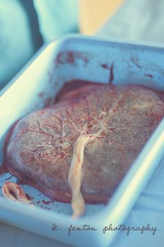 Placenta, like a pancake of mother meat :)