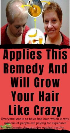 wants to have fine hair, which is why millions of people are paying for expensive treatments that promise magical results. Oil For Hair Loss, How To Grow Eyebrows, Skin Tag Removal, Like Crazy, Varicose Veins, Fine Hair, Teeth Whitening, Health Remedies, Anti Aging