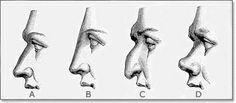 La Cirugía Estética trata las alteraciones de las formas del rostro: Las narices grandes o deformes, las orejas prominentes y otras deformid...