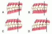 Looking for online definition of dental malocclusion in the Medical Dictionary? What is dental malocclusion? Meaning of dental malocclusion medical term. What does dental malocclusion mean? Dental Humor, Dental Hygiene, Dental Health, Teeth Whitening Remedies, Natural Teeth Whitening, Orthodontic Appliances, Crooked Teeth, Dental Veneers, Teeth Care