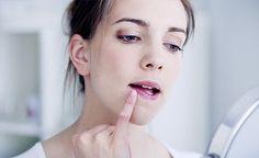Das Herpes-Virus kann zu den unangenehmen Herpesbläschen führen. Es gibt jedoch eine Reihe naturheilkundlicher Massnahmen, die die Bläschen schnell verschwinden lassen und eine präventive Wirkung zeigen.