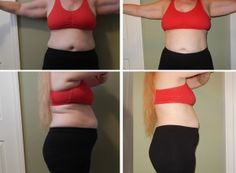 Body contouring with Lipo-Light Pro is the best way to target and tone problem fatty areas that other body contouring technologies are unable to treat. Body Contouring, Surgery, Fat, Two Piece Skirt Set, Skin Care, Fashion, Moda, La Mode, Skincare