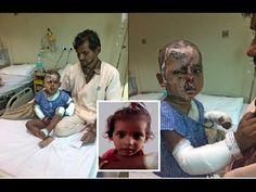 Aditya Raj, 2, suffers horrific burns in acid attack n New Delhi, India