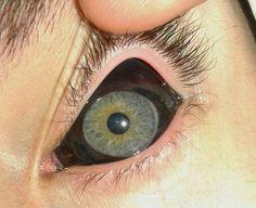 "rhubarbes: "" Eye tattoo via Deadfix More Tattoo here. "" Piercings, Aesthetic Eyes, Gore Aesthetic, Monster Prom, Tattoo Photography, Eye Art, Body Modifications, Body Mods, Character Inspiration"