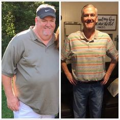 Rusty's Success - Before After Gastric Sleeve  #wls #bariatricsurgery #weightloss #wlscommunity #diet