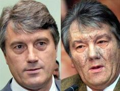 Unsightly skin welts formed a 'new organ' that helped Victor Yushchenko survive severe dioxin poisoning, say doctors who helped him recover