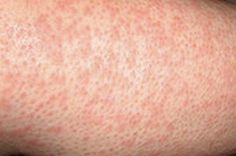 Scabies- a contagious skin infection - Yabibo Heat Rash Treatment, Skin Rash, Healthy Skin, Pictures, Photos, Healthy Skin Tips, Grimm