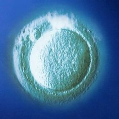 "The American Society of Reproductive Medicine (ASRM) has announced that mature oocyte cryopreservation (freezing of unfertilized human eggs) is no longer ""experimental""."
