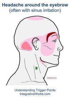 fi-headache-around-the-eyebrow