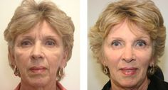 Remove Smile Folds Around The Mouth - Employ These Yoga Facial Exercise Methods