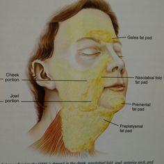 Subcutaneous facial fat