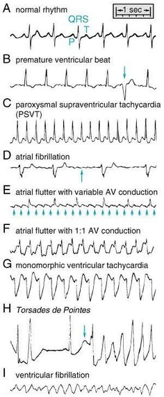 Heart Rhythms Made Easy Ecg Nursing School Tips, Nursing Tips, Nursing Notes, Nursing Schools, Study Nursing, Ob Nursing, Funny Nursing, Medical Students, Nursing Students